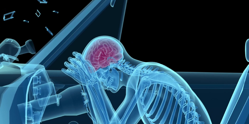personal injury attorneys - TBI cases
